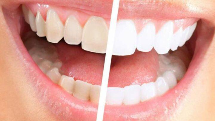 Estetica del sorriso ed estetica dentale, un settore in forte crescita